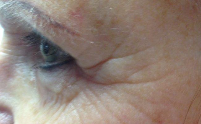 Bijgesneden foto 1 links direct voor de behandeling.