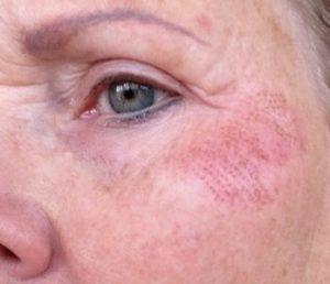 Bijgesneden foto 3 links plasma-behandeling na één dag