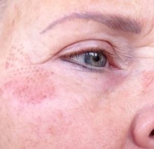 Bijgesneden foto 3 rechts plasma-behandeling na één dag