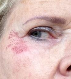 Bijgesneden foto 4 rechts plasma-behandeling na drie dagen