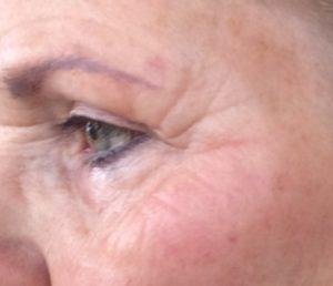 Bijgesneden foto 5 links plasma-behandeling na 14 dagen