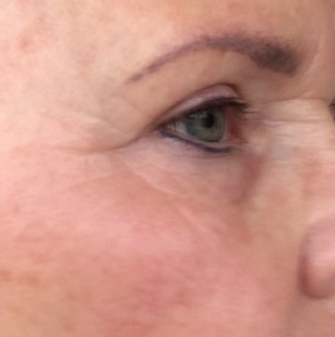 Bijgesneden foto 5 rechts plasma-behandeling na 14 dagen