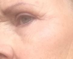Bijgesneden foto 6 links plasma-behandeling na één week 's avonds genomen