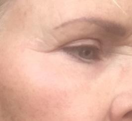 Bijgesneden foto 6 rechts plasma-behandeling na één week 's avonds genomen