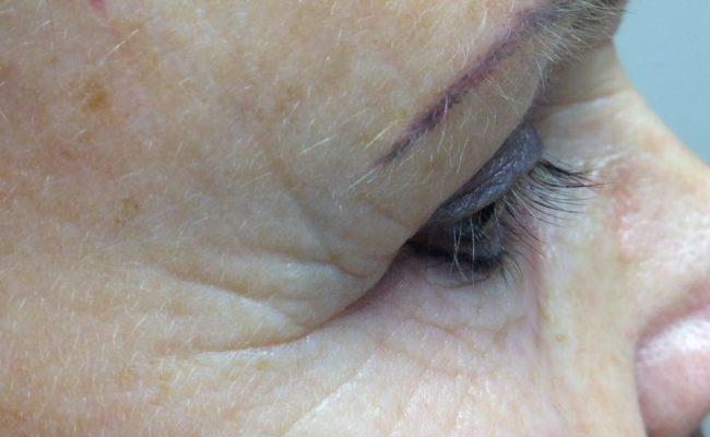 Foto 1 rechts direct voor de behandeling