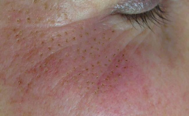 foto 2 rechts direct na de plasmbehandeling